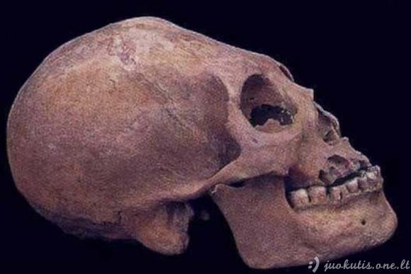 Dirbtinė kaukolės deformmacija