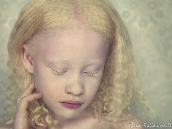 Albinizmas