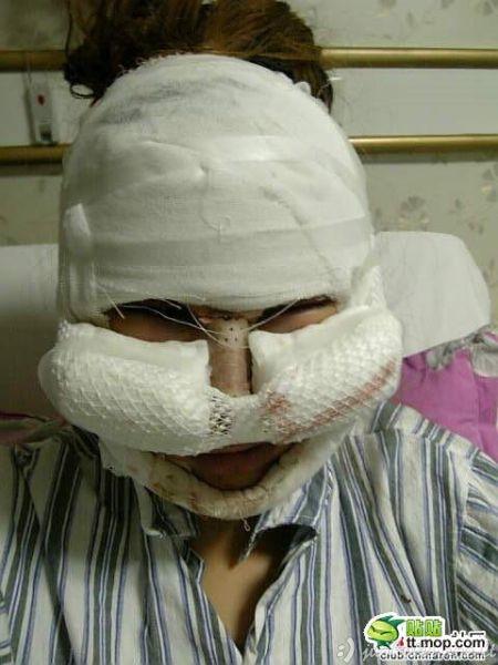 Kinė po plastinės operacijos