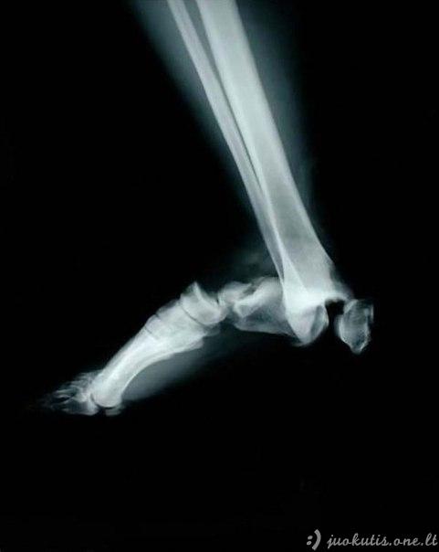 Šokiruojančios rentgeno nuotraukos