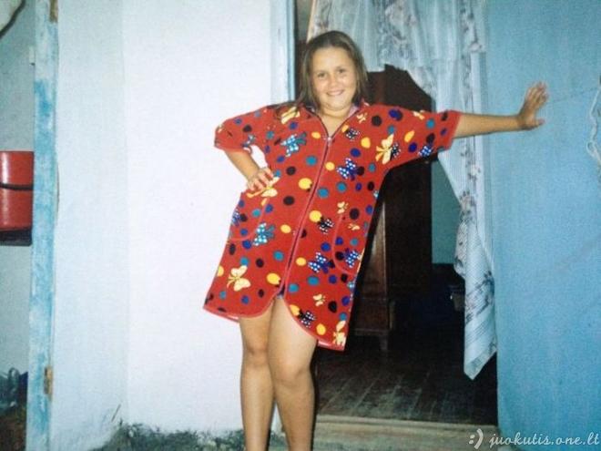 Neįtikėtina svorio metimo sekmė