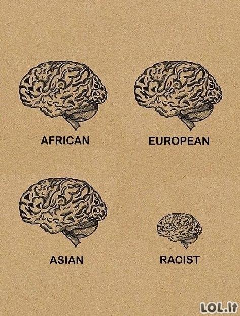 Rasizmas