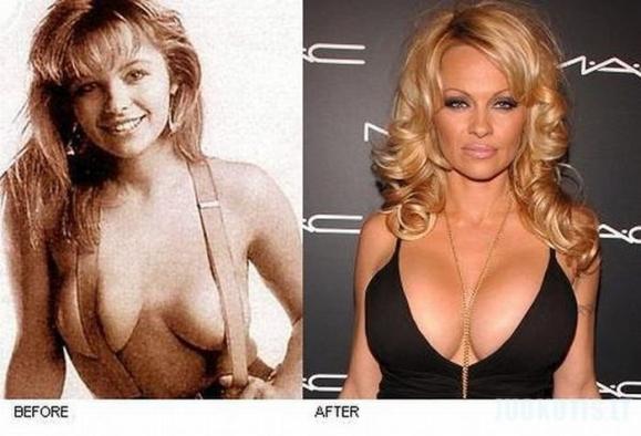 Prieš ir dabar