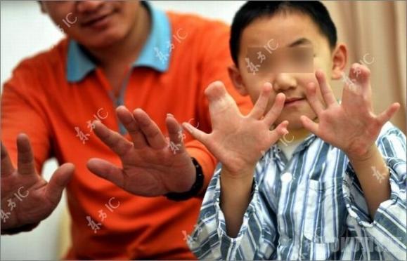 Černobylio auka Kinijoje
