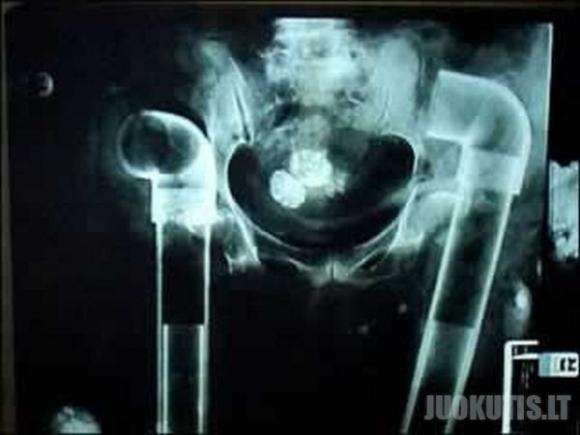 Keistos rentgeno nuotraukos