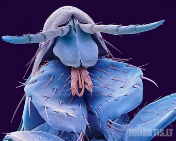 Įvairus parazitai po mikroskopu