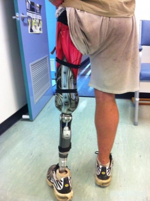 Terminatoriaus protezas