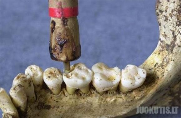 Seni dantų gydymo metodai