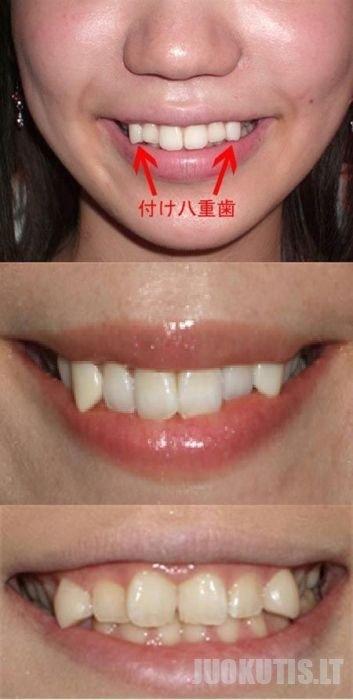 Vampyriška šypsena