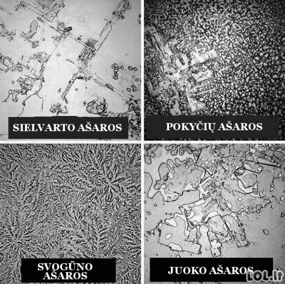 Kaip skiriasi ašaros žiūrint pro mikroskopą
