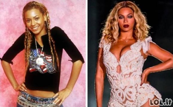 Įžymybės: prieš ir po [20 foto]