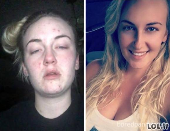 Narkomanai: prieš ir nustojus vartoti