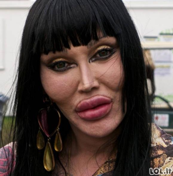 Kai plastinės operacijos padaro monstrus iš žmonių