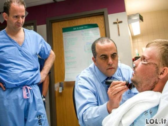 Specialistai padovanojo vyrui naują veidą ir šis po operacijos atrodo neatpažįstamai