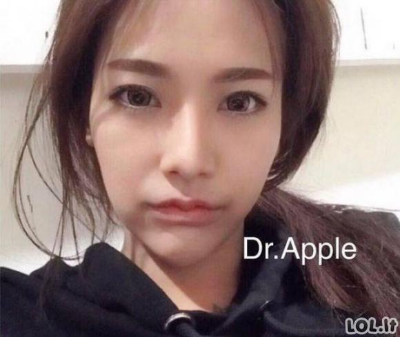 Vėžlio lūpos - naujausia Tailandiečių mada