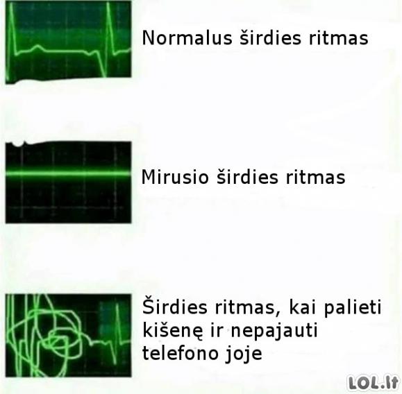 Skirtingi širdies ritmai