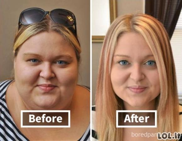Kaip numesti kilogramai pakeitė žmonių veidus