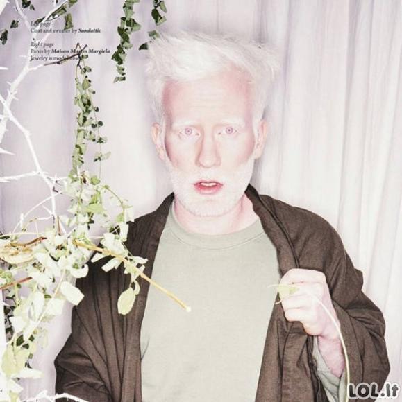 Kaip atrodo įvairių rasių albinosai