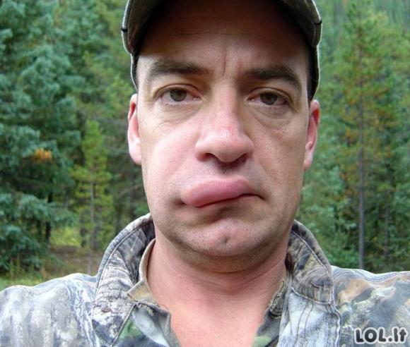 Žmonės, kurie natūraliai pasididino lūpas
