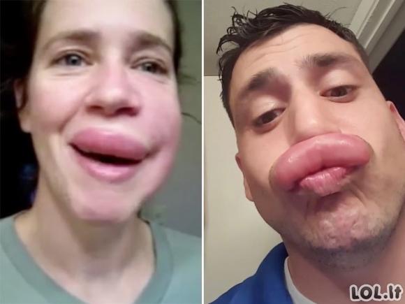 Natūralios lūpų didinimo procedūros [18 foto]