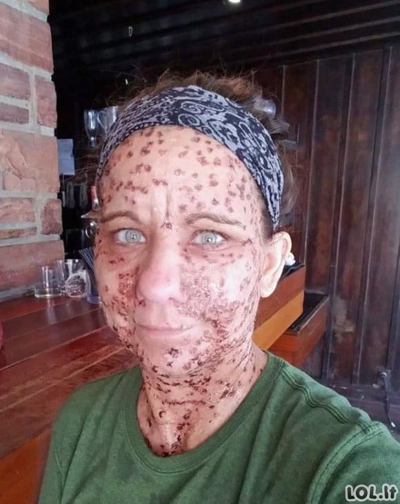 Moters veidas buvo nusėtas 6 tūkst. auglių - operacija jai suteikė naują gyvenimą