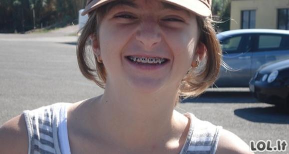 Mergina, kuri kentė patyčias mokykloje, pasidarė plastinių operacijų už daugiau, nei 45 tūkst. eurų
