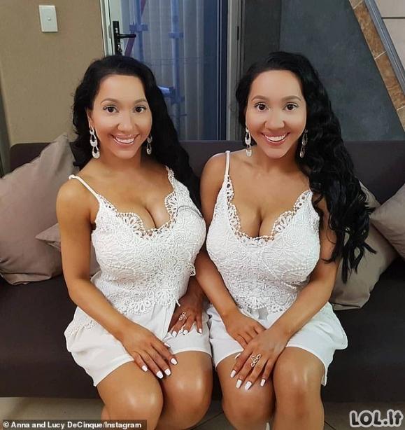 Pakvaišusios dvynės, išleidusios virš 250 tūkst. dolerių, kad būtų dar panašesnės viena į kitą ir miegančios su tuo pačiu vaikinu