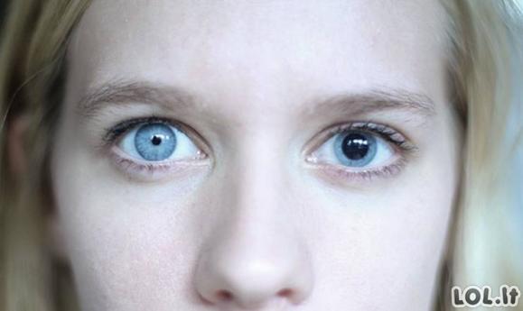 Žmonės, kuriems genetika suteikė išskirtinius išvaizdos bruožus [GALERIJA]