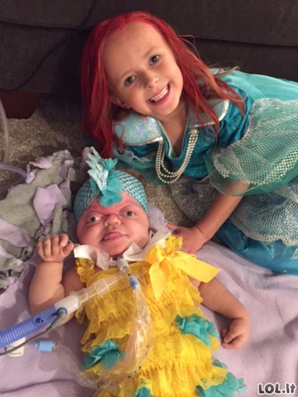 Mergaitė gimė su reta liga, kuria serga tik 25 žmonės pasaulyje