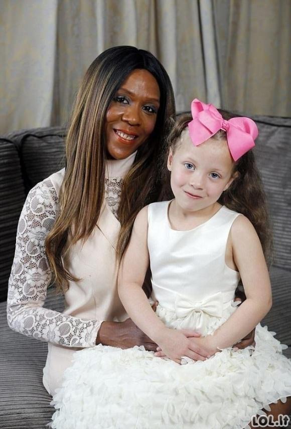 Tamsiaodė moteris pagimdė baltaodę mergaitę. Niekas netiki kad jos mama ir dukra!