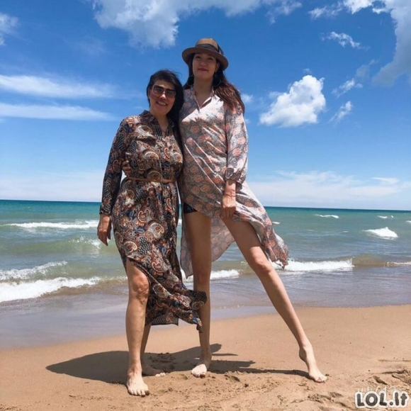 Kaip atrodo ilgiausių kojų pasaulyje savininkė Renė Bud