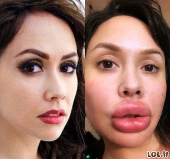 Merginos, kurios persistengė su lūpų pasididinimu ir patapo antimis