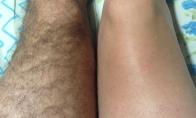 Apie depiliaciją, žmoną ir kiti