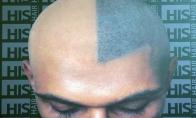 Plaukų imitacija
