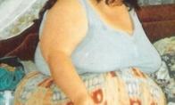 Moteris numetė 140 kilogramų