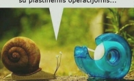 Plastinė operacija