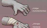 Ką apie jus pasako rankų žaizdos