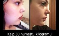 Kaip svoris pakeičia veidą