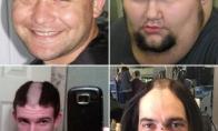 Žmonės išsiskuto savo plaukus tiesiai per vidurį