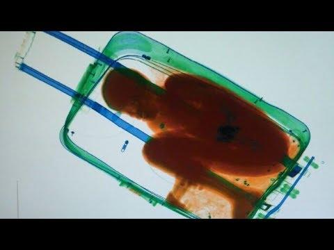 Keisčiausi daiktai rasti oro uosto bagaže