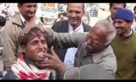 Dantų balinimas Indijoje