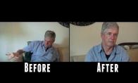 Kaip žmogų su Parkinsono liga veikia žolė